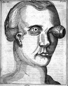 "Georg Bartisch (1535–1607), ''Ophthalmodouleia Das ist Augendienst"", 1586 (the first German text on ophthalmology"