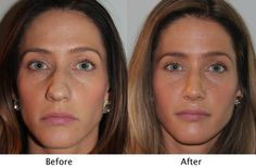 Female Patient before and after sinus surgery