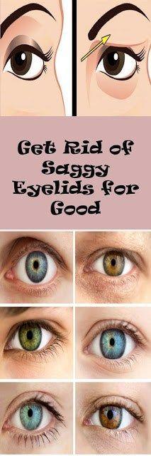 Get Rid Of Saggy Eyelids For Good - healthyload