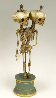 Kunstkamera | Skeleton of Siamese Twin in the Kunstkamera