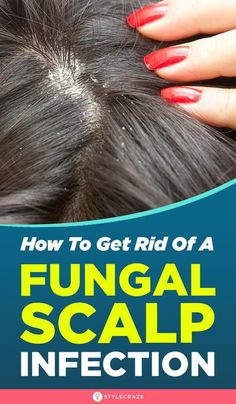 [ Hair Care : How To Get Rid Of A Fungal Scalp Infection: When the dead skin cells combine with oil and pollutants, it creates the perfect breeding ground Biotin For Hair Loss, Oil For Hair Loss, Hair Loss Shampoo, Biotin Hair, Hair Loss Treatment, Treatment For Dry Scalp, Natural Hair Treatments, Updos, Skin Tips