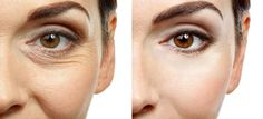 #Wrinkle Reduction – Now A Popular Trend In Australia