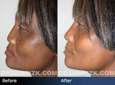 Before and after photo of a 50 year old female patient who had a revision rhinoplasty.