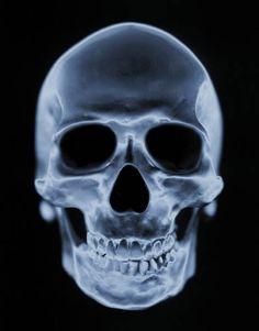 Xray human skull