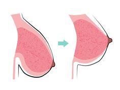 Gezielte Fitness-Übungen können deine Brüste sehr gut straffen!