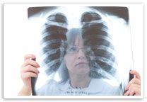Malignant mesothelioma is a rare type of cancer that occurs in the thin layer of cells lining the body's internal organs, known as the mesothelium. There are three recognized types of mesothelioma.