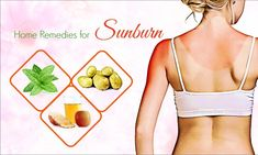 Top 32 Best Natural Home Remedies To Relieve Sunburn Natural home remedies for sunburn relief show 32 best solutions to treat sunburn effectively at home