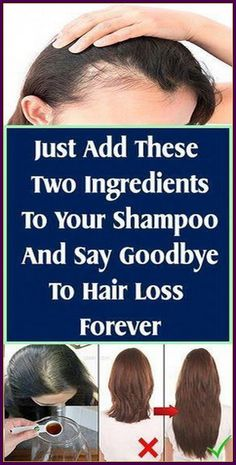 Oil For Hair Loss, Stop Hair Loss, Prevent Hair Loss, What Causes Hair Loss, Excessive Hair Loss, Homemade Shampoo, Vitamins For Hair Growth, Hair Loss Shampoo, Baby Shampoo