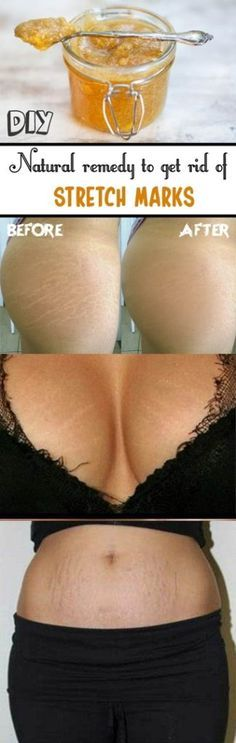 This develops fine lines on their body which is known as stretch marks. Stretch marks is also seen when one is pregnant or trying to gain muscles. Sometimes hormonal changes also leads to stretch marks. Beauty Care, Beauty Skin, Hair Beauty, Beauty Makeup, Skin Tips, Skin Care Tips, Beauty Secrets, Beauty Hacks, Body Hacks