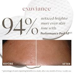 Beauty Care, Beauty Skin, Beauty Makeup, Chemical Face Peel, Beauty Secrets, Beauty Tips, Face Skin Care, Even Skin Tone, Facial Care