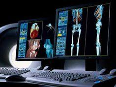 Biomédico curioso: Funções do Biomédico no diagnóstico por imagem