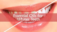 Natural Teeth Whitening Remedies All foods you eat can affect your teeth. There are a few ways to use Essential Oils for Whiter Teeth. You can create a homemade teeth whitener very easily. Teeth Whitening Remedies, Natural Teeth Whitening, Beauty Hacks Skincare, Beauty Tips, Beauty Hacks Eyelashes, Cucumber Beauty, Tooth Sensitivity, Coconut Oil Pulling, Prevent Wrinkles