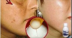 Facial spots will disappear in seconds! Try this homemade recipe!