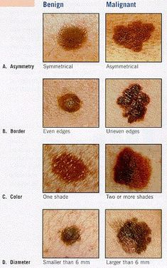 The ABCDE rule for skin cancer easily lays out how to identify a melignant mole on your body.
