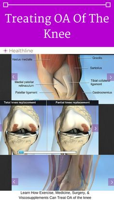 Use this interactive anatomy slideshow to see the areas of the knee and leg that respond to specific treatments for Osteoarthritis (OA) of the knee. Learn about the effectiveness of exercise on pain and inflammation or the effects of medications on knee pain.