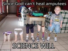 Atheism, Religion, God is Imaginary, Science. Since god can't heal amputees science will.