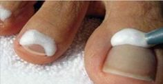Os fungos que se alojam nas unhas causam um problema denominado onicomicose.Também chamada de tinha das unhas, é uma infecção que ataca as unhas tanto das mãos como dos pés.Ela pode surgir devido a fatores que nada têm a ver com as unhas, como: