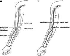 Figure 1. brachiocephalic fistulas, transposed brachocephalic fistulas and upper arm grafts. links to site with powerpoint about outcomes