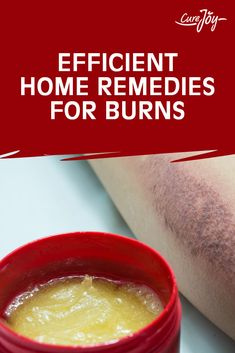 Efficient Home Remedies For Burns Natural Health Remedies, Herbal Remedies, First Aid For Burns, Home Remedies For Burns, Ways To Be Happier, Health Matters, Healthy Living Tips, Natural Medicine, Soap Making