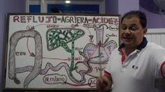 PASOS PARA ELIMINAR EL REFLUJO DOCTOR ALEJANDRO SEGEBRE