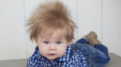 """Oliver Dunn has been turning heads since he was born five months ago, because of the hair on his head. Oliver, of Nampa, Idaho, was born with a full head of dark hair that has grown into an adorably wild mane. """"Always,"""" Oliver's mom, Angie Dunn, said when asked if strangers stop her to ask about Oliver's hair."""