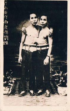 """Chang and Eng... the original """"Siamese Twins"""". They each married sisters and had several children. Can't imagine what that was like!"""