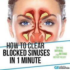 Having clogged sinuses isn't fun. You can't breath, you can't smell, it can hurt, and it changes your voice entirely. Finding relief when you have clogged sinuses is usually like finding a million dollars on the ground — it's amazing! advertisement - learn more The causes for nasal congestion can range greatly, and you don't have […]