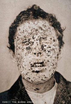 1881 New York Smallpox victim Wonder if it hurt??? They'd give him some strong narcotic like Heroin cause they used it as such back in the day.
