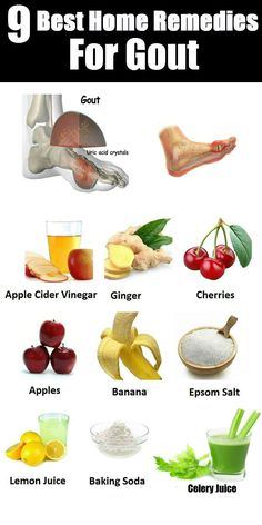 9 Best Home Remedies For Gout