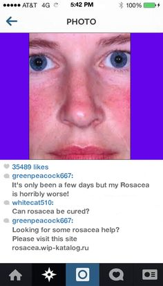 Tetracycline For Rosacea 134002 - Rosacea. You have nothing to lose! Visit Site Now.