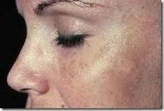 Cara Merawat Kulit Agar Tidak Kusam - Wajah kusam, kotor, dan penuh minyak sudah pasti akan membuat anda tidak nyaman bukan hanya kaum perempuan saja kaum pria juga sudah pasti merasa tidak nyaman dan terganggu apabila memiliki wajah kusam, kotor dan nampak mengkilap.