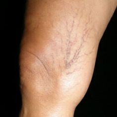 Effective Herbal Remedies for Spider Veins - Natural Treatments & Cure For Spider Veins | Home Remedies