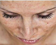 comment enlever les taches sur le visage