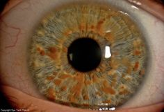 Name: Josef Tamory  Description: Ophthalmic Photography #Slitlamp | Lisch nodules: small, round, lightly pigmented benign hamartomas that develop within 2nd-3rd decades of life and in 95% of #Neurofibromatosis cases - usually bilateral and inferior half of iris