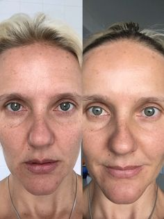 This is me after using the Jeunesse Luminesce serum for 5weeks  Skin is looking brighter, less blotchiness and soft. Pigmentation is much lighter.