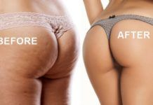 Legs and Butt Workout Is the Ultimate Way to Get Rid of Cellulite