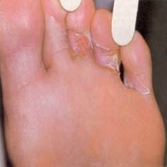 Home Remedies For Athlete's Foot - Natural Treatments & Cure For Athlete's Foot | Search Home Remedy