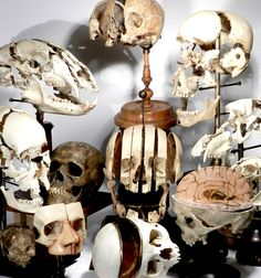 Sagittal Sectioned, Exploded or Beauchened Skulls