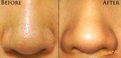 Ako sa zbaviť čiernych bodiek na tvári po domácky
