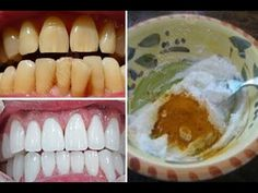 Best Teeth Whitening Kit – Pick Your Choice Teeth Whitening That Works, Whitening Skin Care, Teeth Whitening Remedies, Teeth Whitening System, Natural Teeth Whitening, Tooth Sensitivity, Natural Home Remedies, Food, Yellow