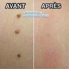 Vos tétines de peau vous dérangent? Voici une solution naturelle pour les faire disparaître!