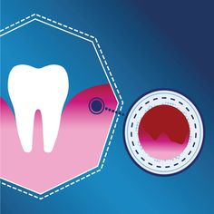 IT'S IMPORTANT TO KNOW the difference between gingivitis and periodontitis. One is reversible, and the other causes permanent damage if left untreated!