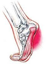 For those with heel & foot pain, simply going in to get a shot is not the real answer.  Addressing the cause is the way to go!  See a Deep Tissue Massage Therapist who works with sports related conditions & knows how to do Myofascial Release, Active Isolated Stretching and/or Structural Integration Therapies.  Research self help treatments as well.    In addition, seriously evaluate your footwear!  While a single injury is rarely the cause, repetitive strain & poor gate mechanics often are.