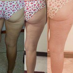 Hot mature pantyhose