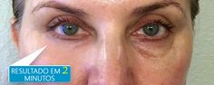 Amazing under eye results with Instantly Ageless Cooking With Coconut Oil, Coconut Oil For Face, Under Eye Bags, How To Line Lips, Puffy Eyes, Face Skin Care, Look Younger, Natural Skin Care, Dark Circles