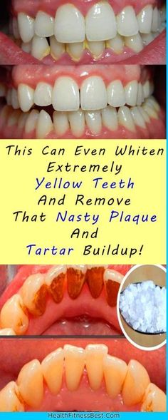 This Can Even Whiten Extremely Yellow Teeth And Remove That Nasty Plaque And Tartar Buildup! #health #teeth #fitness #beauty #diy #teethwhiteningdiy #diyteethwhitening