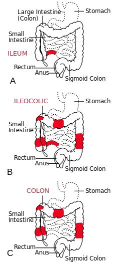 What is the difference between IBD and IBS? IBD is a chronic inflammatory condition whereas IBS is a non-inflammatory type of disease. Patients with IBD . Colon Care, Ulcerative Colitis, Autoimmune Disease, Crohn's Disease, Chrones Disease Symptoms, Crohns Awareness, Diverticulitis, Nursing Tips, Nursing