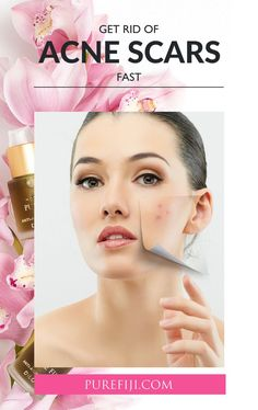 Acne scars are the unfortunate, long-lasting after-effect of your short lived breakout. so what's the best way to repair them? Aloe Vera For Face, Aloe Vera Face Mask, Tomato Face, Face Mapping, Get Rid Of Blackheads, Dull Skin, How To Get Rid Of Acne, Living At Home, Organic Oil