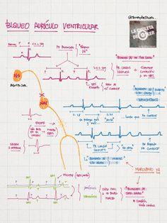 Bloqueo aurículo-ventricular (II)  vía @chuletadeosler