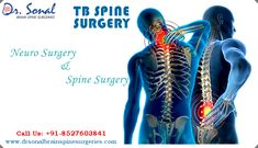 Dr. Sonal Gupta - TB Spine Surgery  Get in touch with Dr. Sonal Spine Surgeries for neuro surgery and spine surgery with advance technology.  Dr. Sonal Gupta is a best tb spine surgeon in delhi and serving people for many years by providing best spinal tuberculosis treatment in india.  Visit http://www.drsonalbrainspinesurgeries.com/ to find more about spinal tuberculosis specialist in delhi.